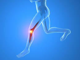 ¿ Cómo cuidar nuestras rodillas?